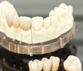 Calgary Dental Centers Porcelain veneers beautify many patients' smiles in Calgary
