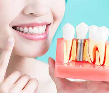 Dr. Asaria, the Calgary Dental Centers team help to keep your implant-supported teeth for life.