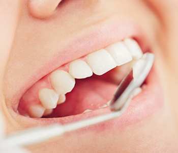 Calgary Dental Centers Consistent, proactive dental care in Calgary protects your oral health
