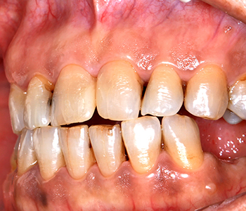 What is periodontal disease At Calgary Dental Centers