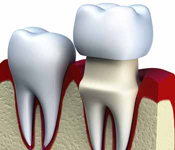 AB area patients ask, are dental crowns strong