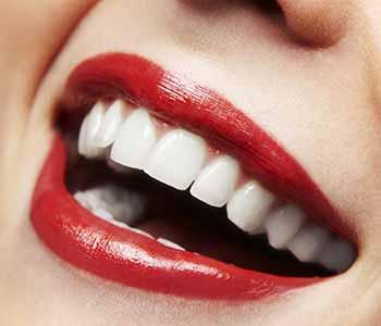 Calgary Dental Centers Calgary, AB area dentist explains take-home whitening kits