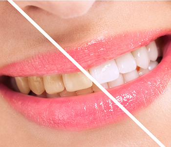 professional teeth whitening available at Calgary Dental Centers