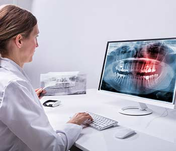 Dental Exam and Teeth Cleaning in Calgary area Image 2