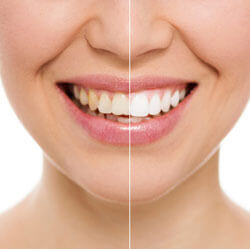Teeth Whitening Calgary - Teeth Whitening Before and After