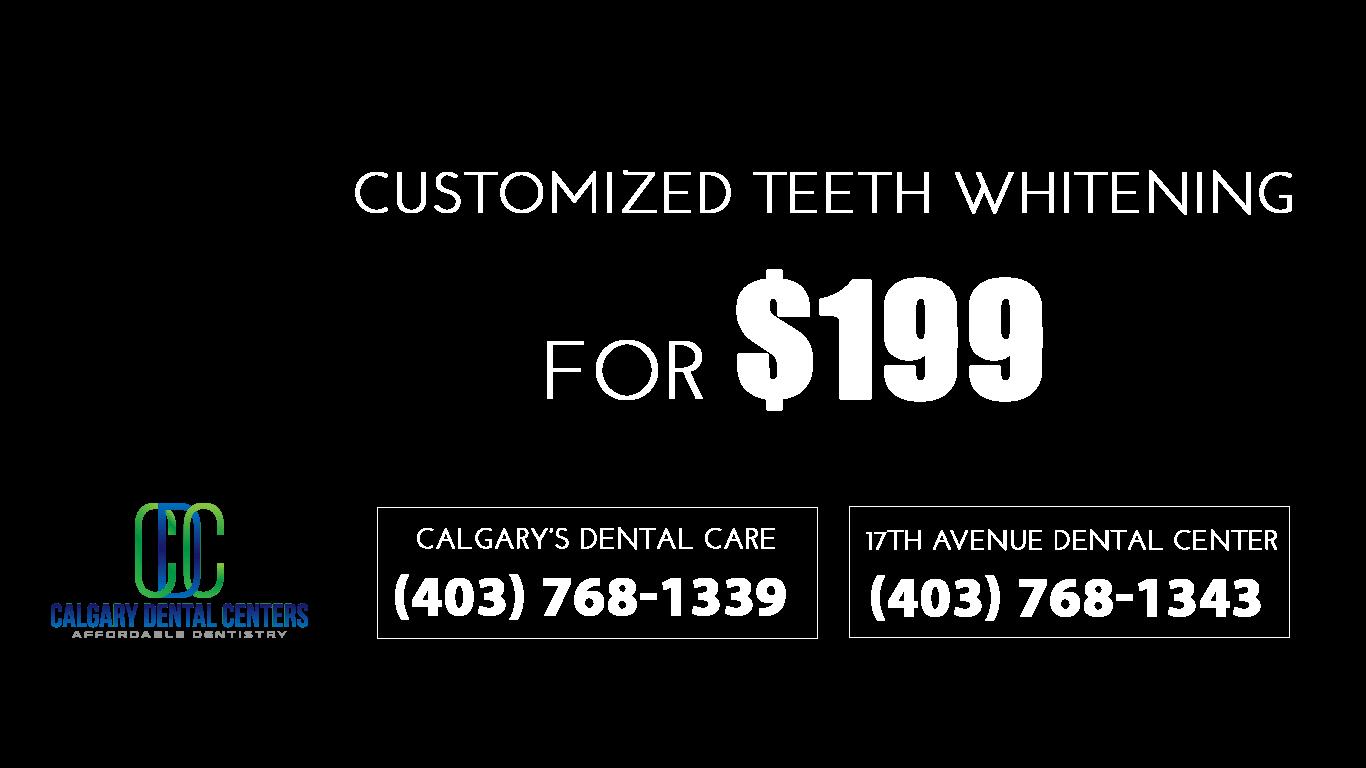 Whitening Offers, Dental Calgary